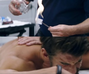 cupping-therapy-michael-phelps